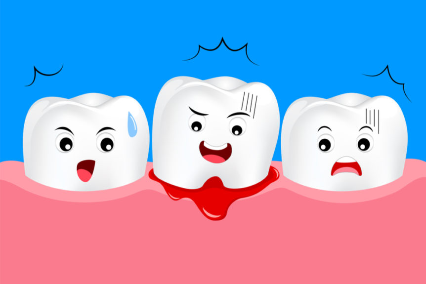 my-gums-bleed-what-should-i-do-cosmetic-and-family-dentistry-of-las-colinas