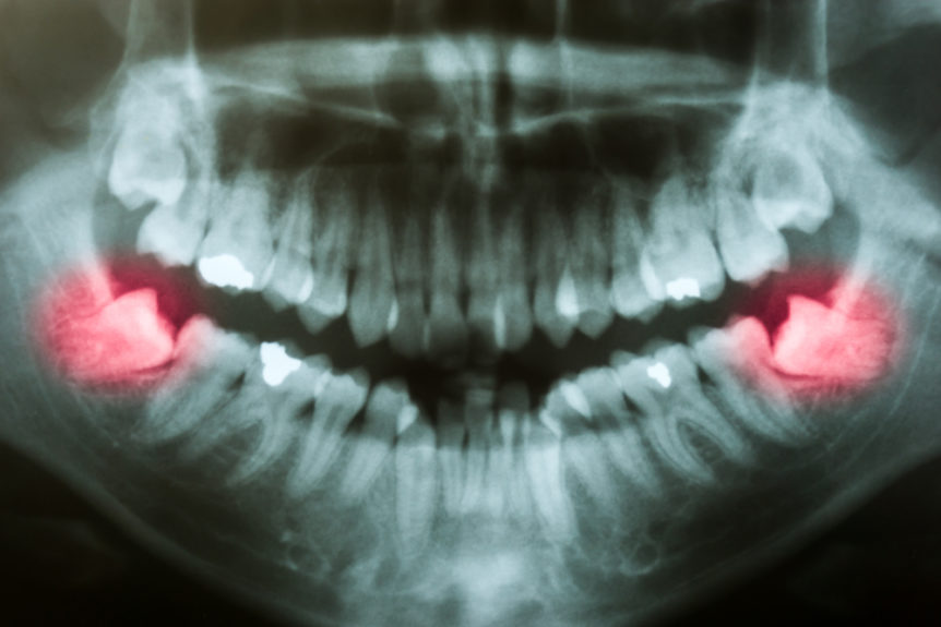 Do-i-have-to-remove-my-wisdom-teeth-cosmetic-and-family-dentistry-of-las-colinas