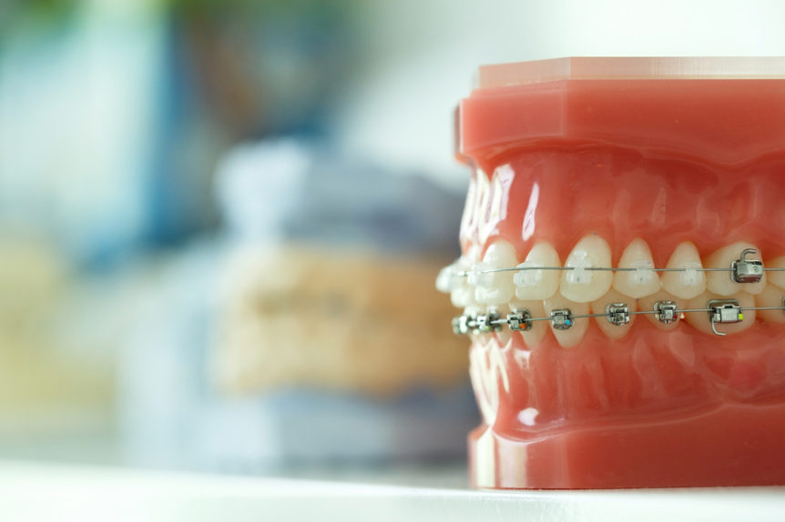 whats-the-difference-between-an-underbite-and-overbite-cosmetic-and-family-dentistry-of-las-colinas