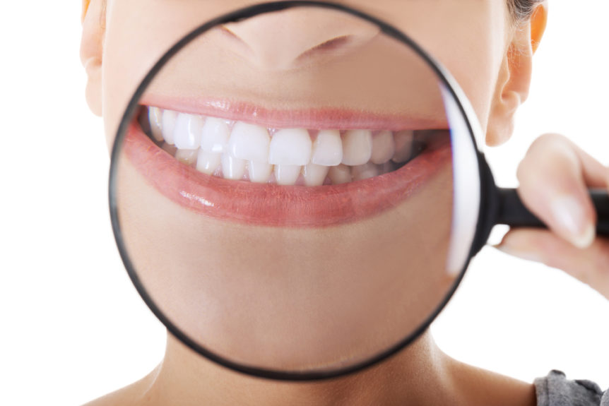 is-zoom-teeth-whitening-for-me-cosmetic-and-family-dentistry-of-las-colinas