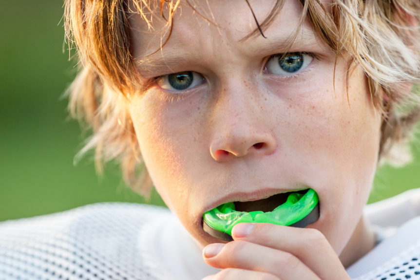are-mouth-guards-necessary-when-playing-sports-cosmetic-and-family-dentistry-of-las-colinas