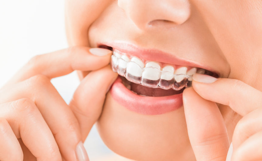 the-dos-and-donts-of-invisalign-cosmetic-and-family-dentistry-of-las-colinas