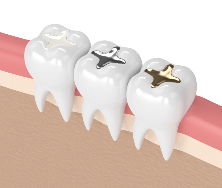 How Have Dental Fillings Changed Over The Years Cosmetic & Family Dentistry of Las Colinas