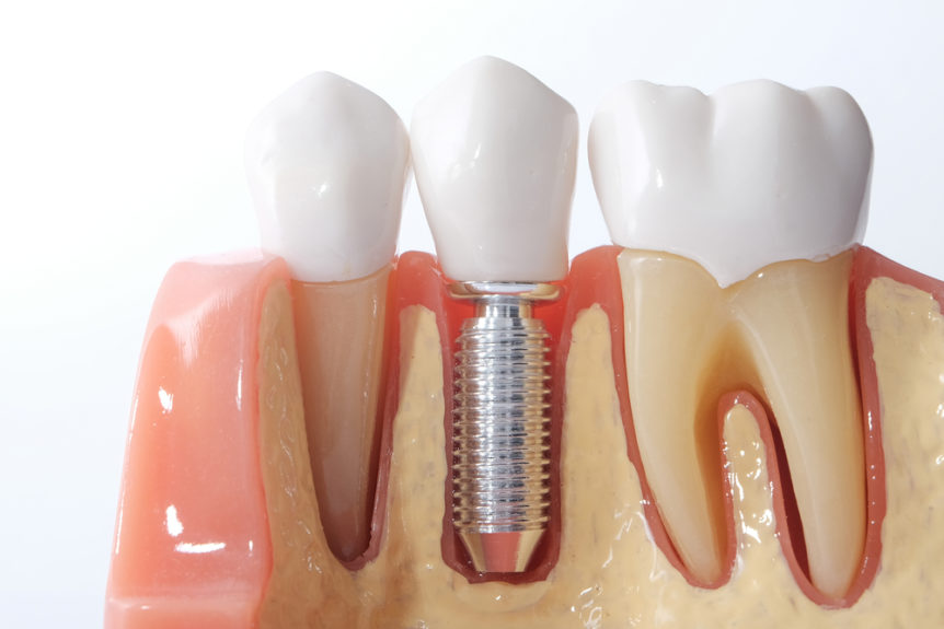 what-is-a-dental-bridge-cosmetic-and-family-dentistry-of-las-colinas
