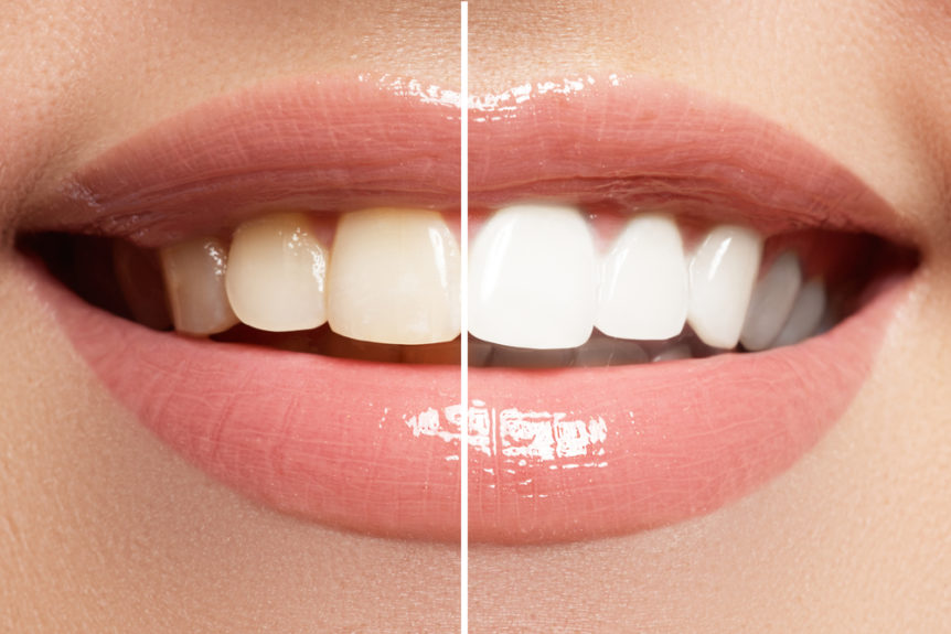 Misconceptions about True Laser Teeth Whitening - Cosmetic & Family