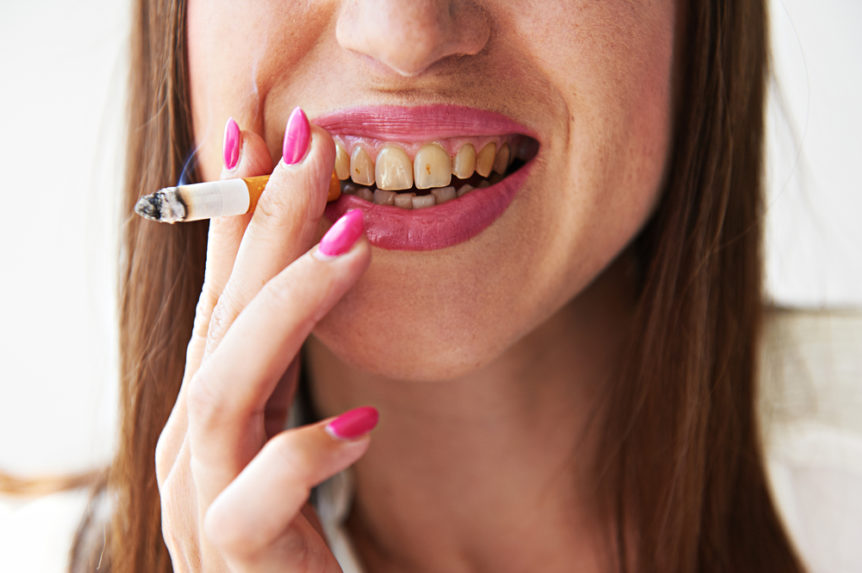 How Smoking Affects Your Mouth - Cosmetic & Family Dentistry of Las Colinas