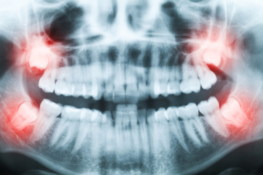 Wisdom Teeth: What are They? - Cosmetic & Family Dentistry of Las Colinas