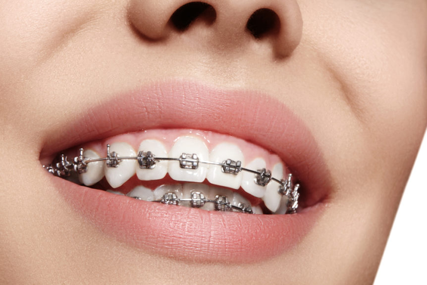 Tips to Living with Braces - Cosmetic & Family Dentistry of Las Colinas