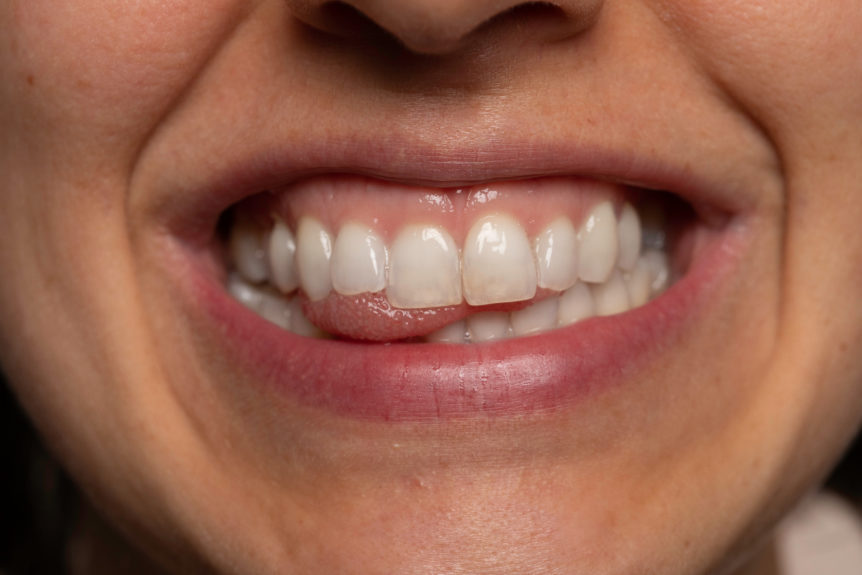 How Your Teeth Affect How You Talk - Cosmetic & Family Dentistry of Las Colinas