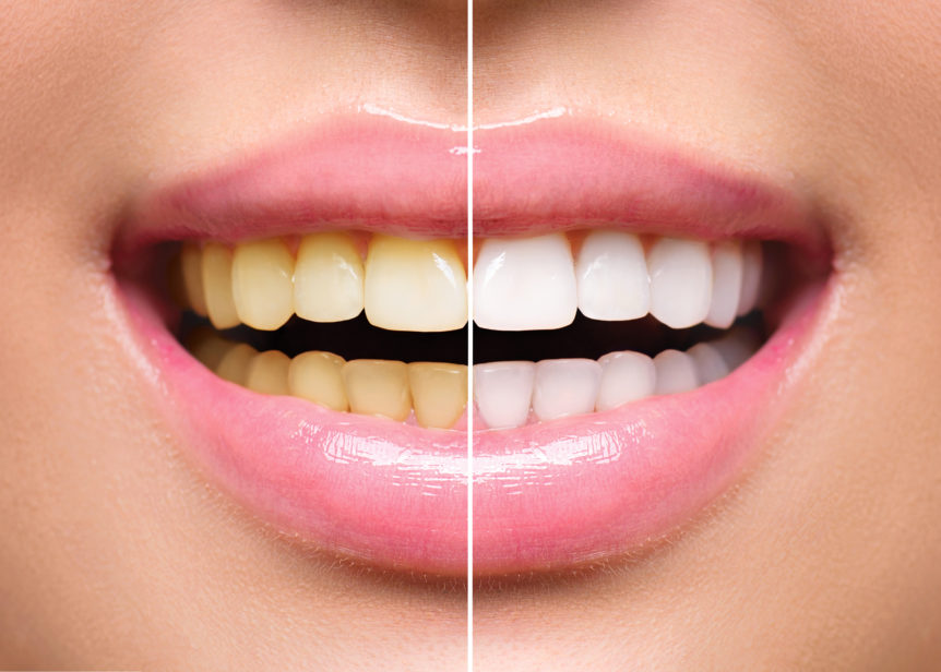 How Does Teeth Whitening Work - Cosmetic & Family Dentistry of Las Colinas